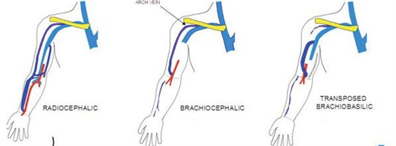 4 Anatomic Locations