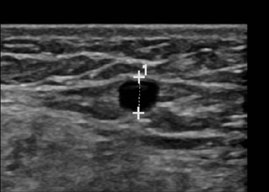 5 Ultrasound Vein3mm